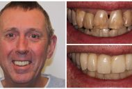 Elite Smiles Patient Before and After 1460x733_Patient 3