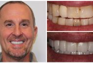 Elite Smiles Patient Before and After 1460x733_Patient 8