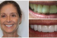 Elite Smiles Patient Before and After 1460x733_Patient 9